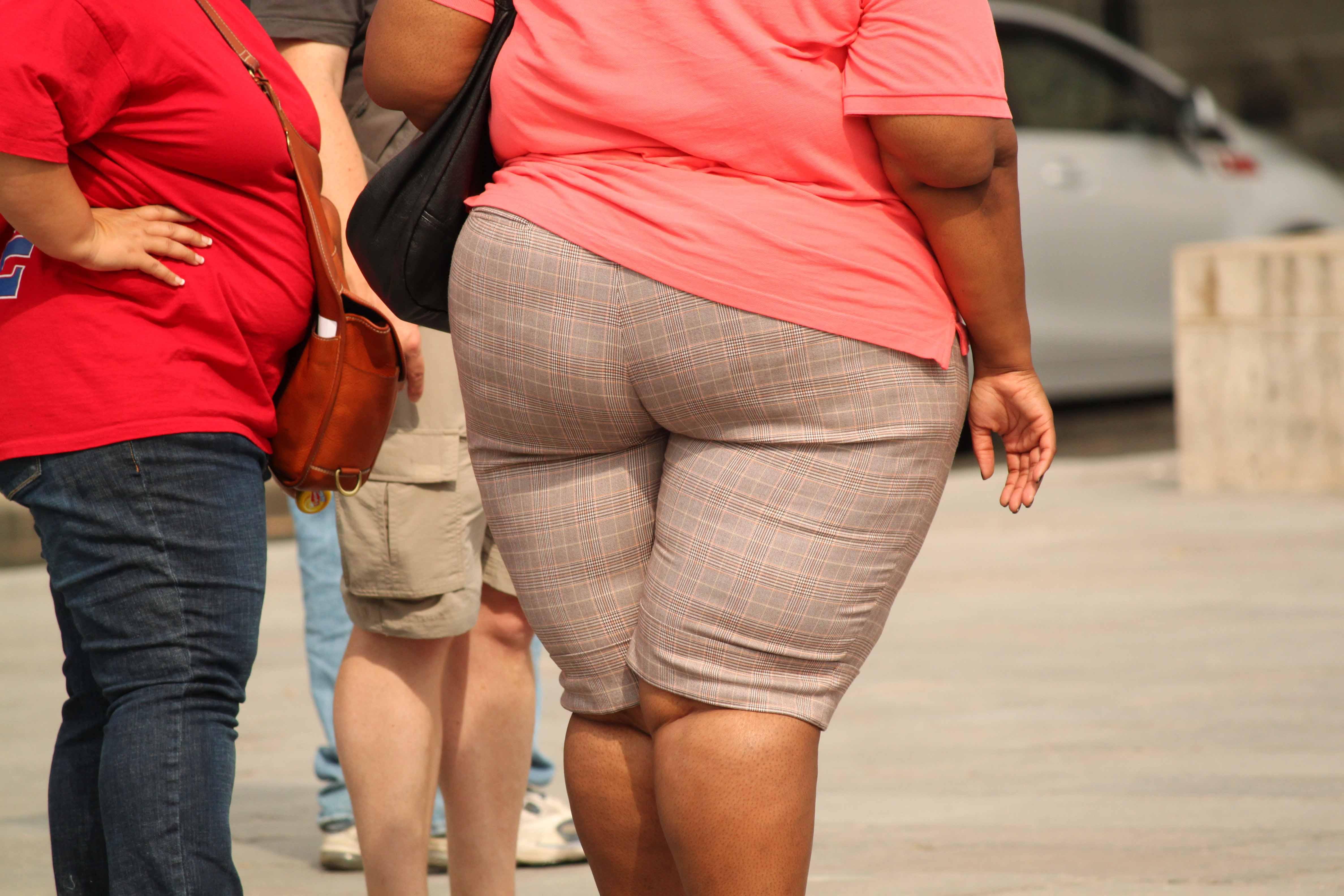 Una investigación redefine el concepto científico de obesidad